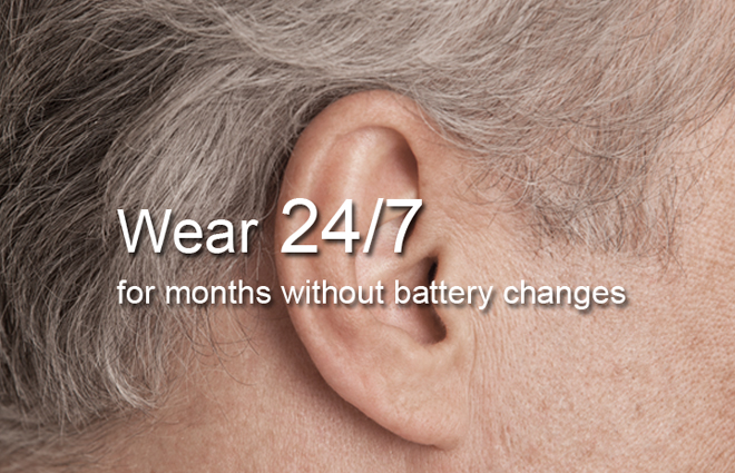 Different Cochlear Implant Devices Cochlear Corporation